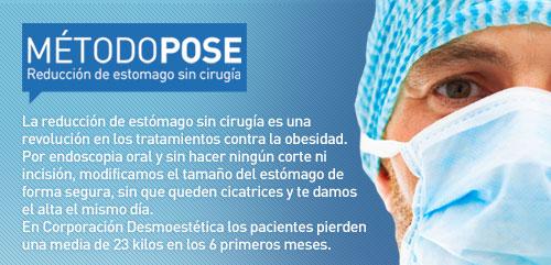 MÉTODOPOSE. Reducción de estomago sin cirugía. ElMétodo POSE es una novedad técnica que representa la opción quirúrgica menos invasiva y más segura paratratar el sobrepeso y la obesidad.